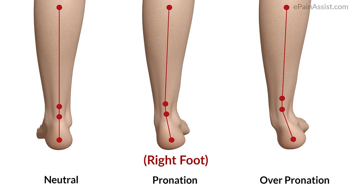 Overpronation-of-Foot